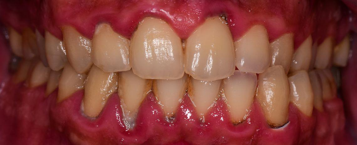 Gum Disease Clean Before