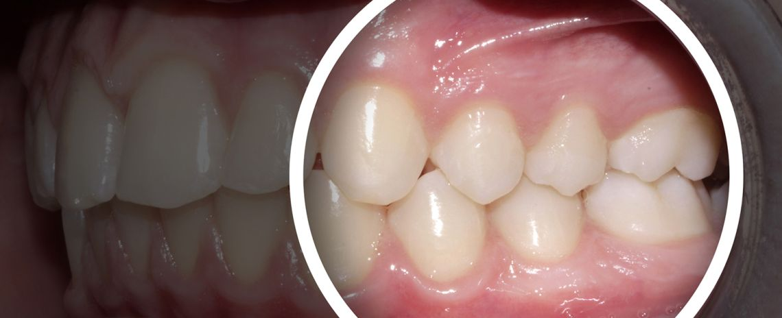 Bite Concerns Teeth Straightening After