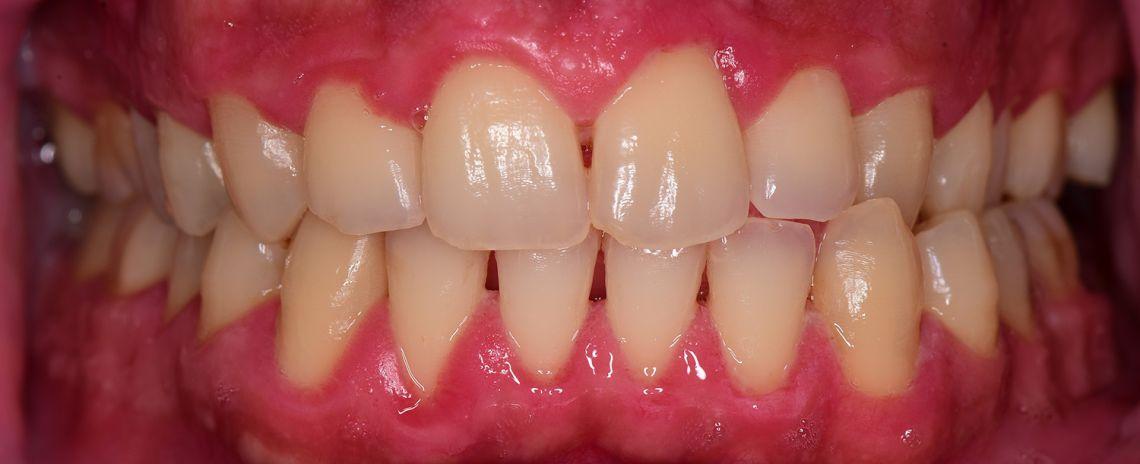 Gum Disease Clean After