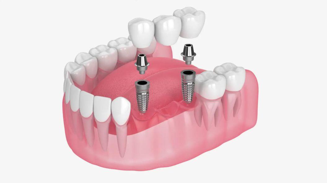 Multiple Implant Video