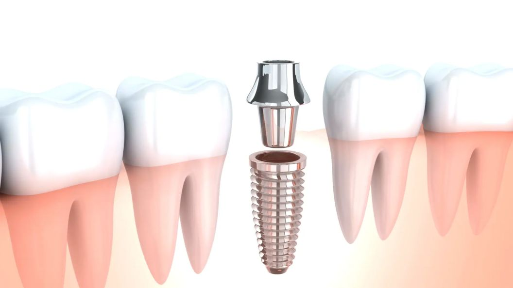 Single Implant Video